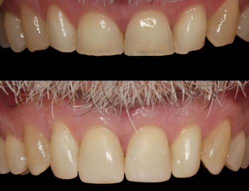 Severe Tooth Wear