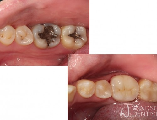 Leaking Fillings and Early Tooth Decay