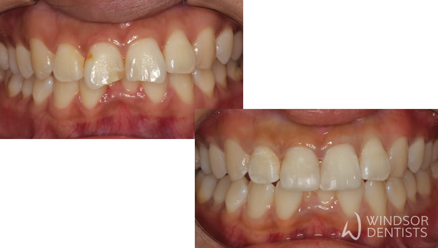 Chipped front teeth restored with dental bonding