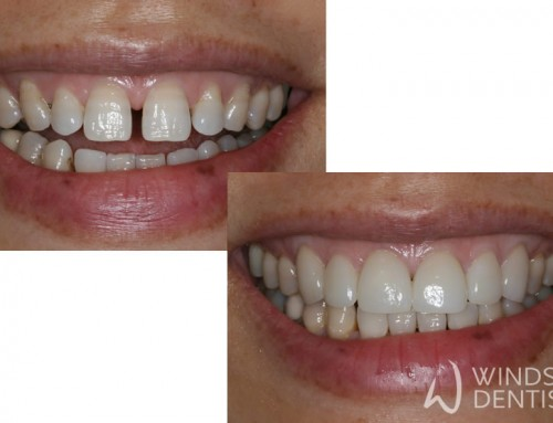 Closing Gaps with Porcelain Veneers