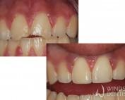 dental trauma chipped teeth