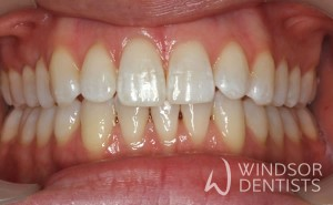 invisalign 10 months after