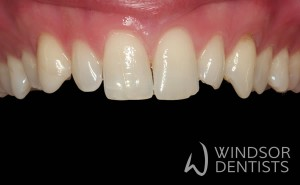 chipped worn teeth before composite veneers