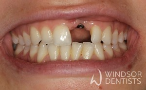 dental implant missing front tooth before