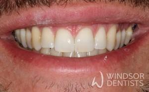 diastema closure after teeth