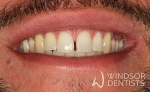 diastema closure before teeth