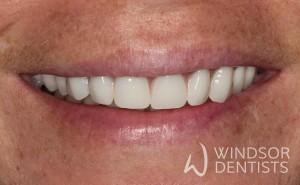 immediate denture after