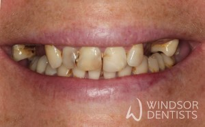 immediate denture before
