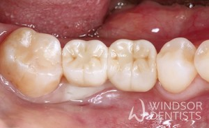 multiple dental implants after