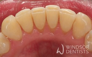 periodontal therapy after