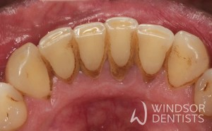 periodontal therapy before