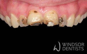 tooth decay and composite veneers before