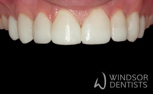 worn teeth after composite veneers