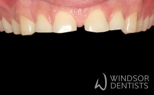 worn teeth before composite veneers