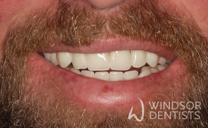 dental decay immediate dentures after