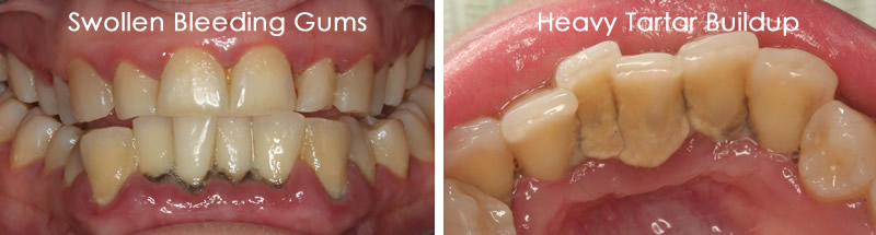 gum disease swollen bleeding gums tartar