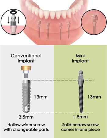 مینی ایمپلنت دندان
