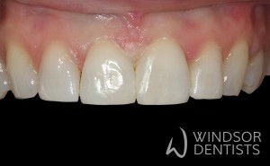 diastema bioclear after