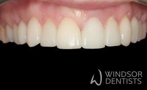 old fillings after porcelain veneers