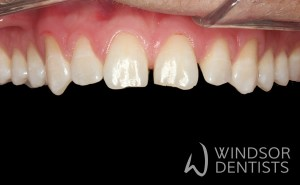 chipped teeth composite bonding before