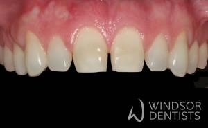 gappy teeth before porcelain veneers