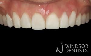 dental erosion composite build ups after