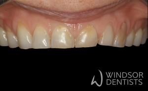 dental erosion composite build ups