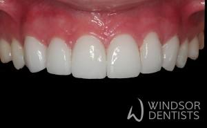 porcelain veneers gappy teeth after