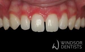 porcelain veneers gappy teeth before