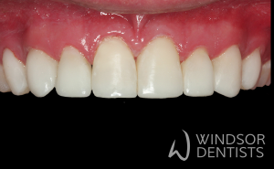 tooth wear bruxism after