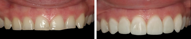 tooth wear before after