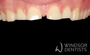 tooth wear bruxism soft drink before