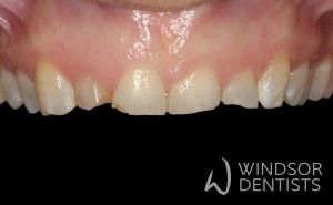 tooth wear bruxism before