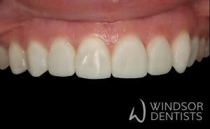 toothwear composite veneers after