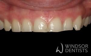 toothwear composite veneers before